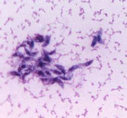 folgen toxoplasmose hund