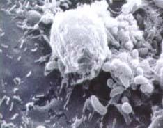 Lawsonia Intrazellularis im Elektronenmikroskop